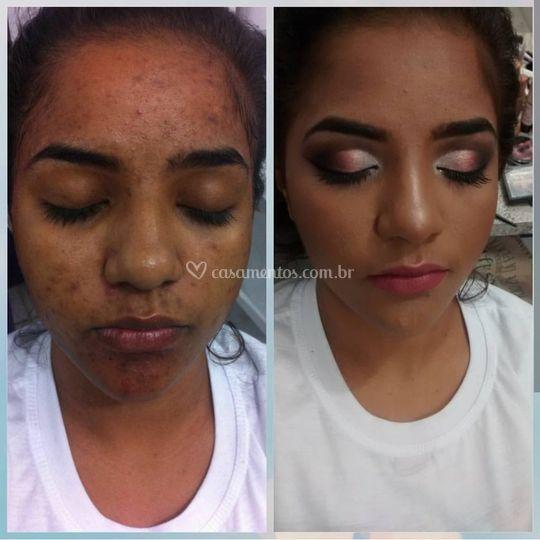Correção de pele