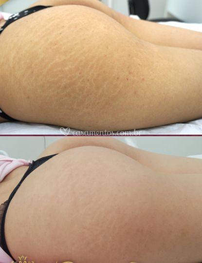 Micopuntura em estrias