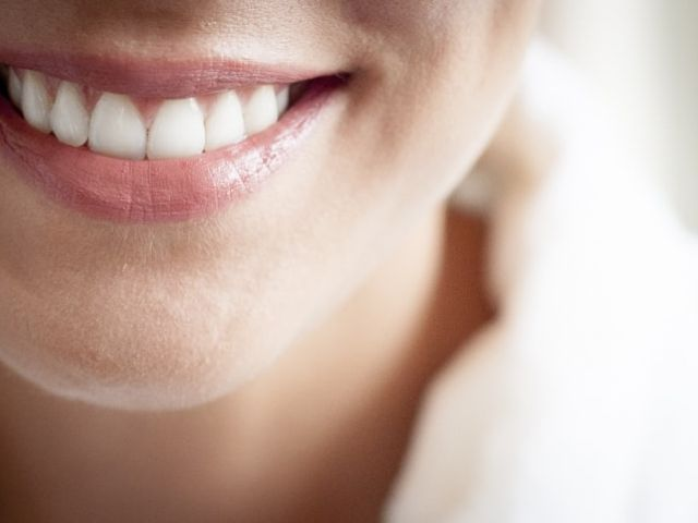 Branqueamento dental antes do casamento