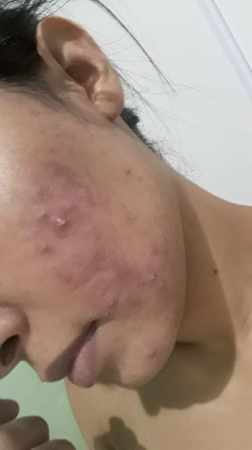Minha experiência com acne, anticoncepcional e casamento (com Fotos) 1
