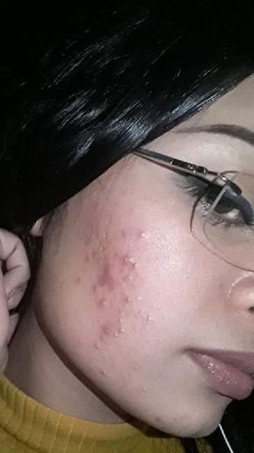 Minha experiência com acne, anticoncepcional e casamento (com Fotos) 2