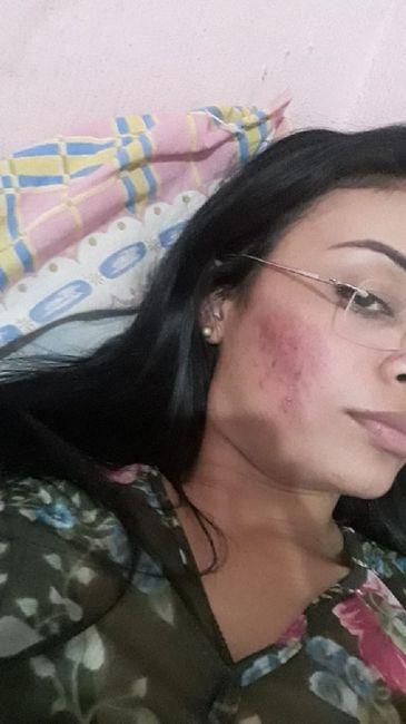 Minha experiência com acne, anticoncepcional e casamento (com Fotos) 3