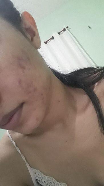 Minha experiência com acne, anticoncepcional e casamento (com Fotos) 5