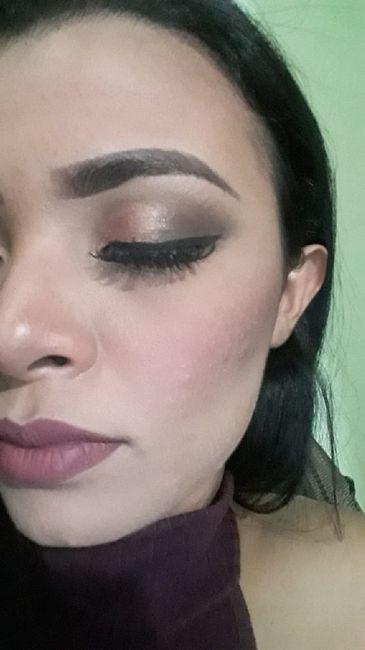 Minha experiência com acne, anticoncepcional e casamento (com Fotos) 6